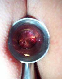 Hemorrhoids Bloody Sto... Internal Bleeding Stool